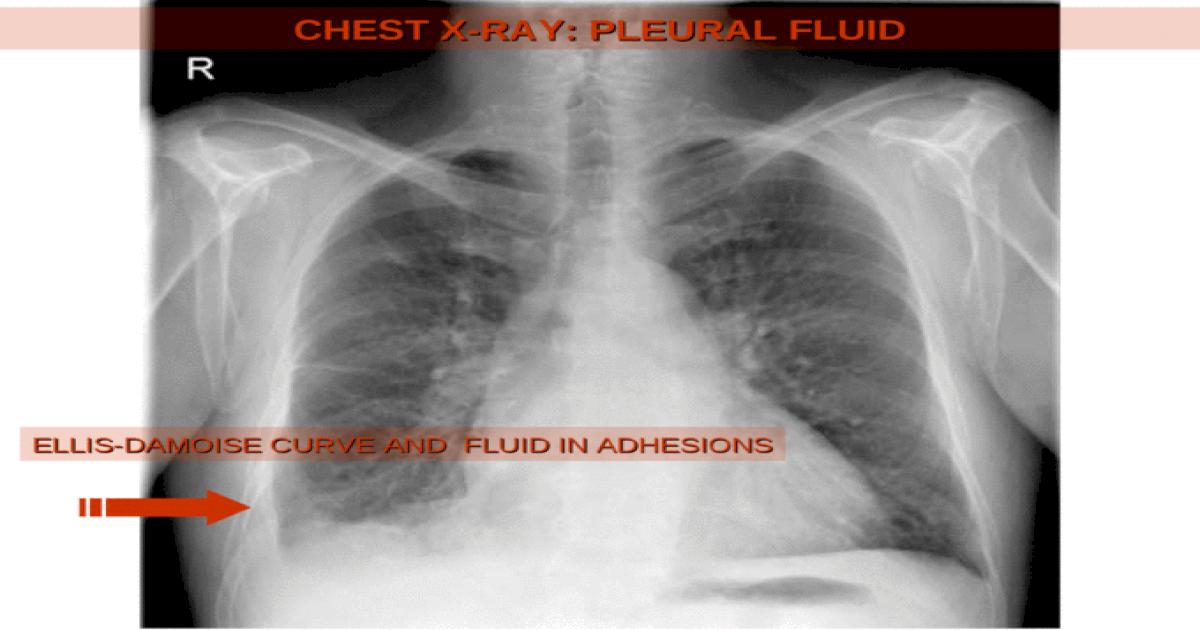 CHEST X-RAY: PLEURAL FLUID ELLIS-DAMOISE CURVE AND FLUID ...